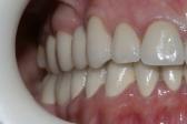 Безметалловые зубные коронки