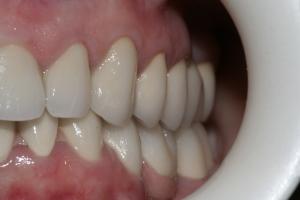 Наши коронки на зубы