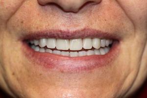 Частичный съемный зубной протез