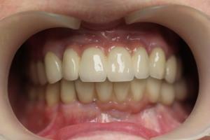 Протезирование зубов МК