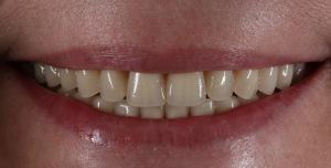 Пластинчатое протезирование зубов