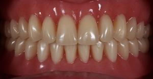 Полный пластинчатый зубной протез