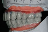 dali-ip-004